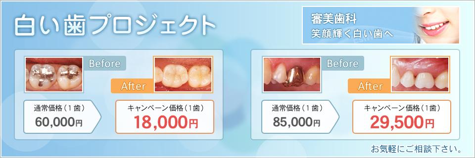白い歯プロジェクト