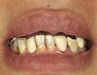 上あごの歯を全て失っている状態