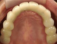 人工の歯を取り付ける
