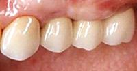 人工の歯を装着