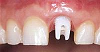 人工の歯の土台を取り付ける
