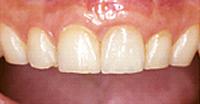 人工の歯をセット